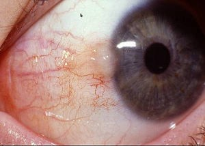 early pterygium