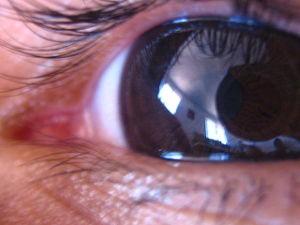 eye glaucoma