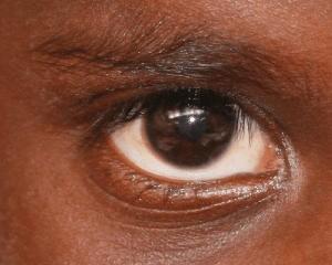 indigenous eye