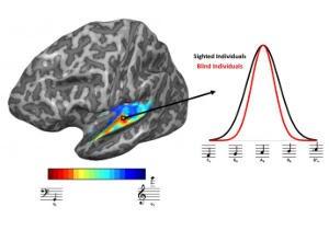 auditory cortex response