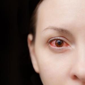 eye redness