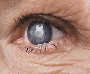 eye damage sun