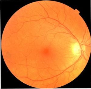 fundus eye image