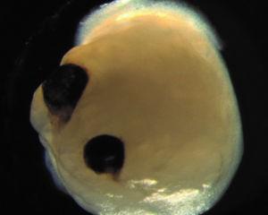 brain organoid with optic cups