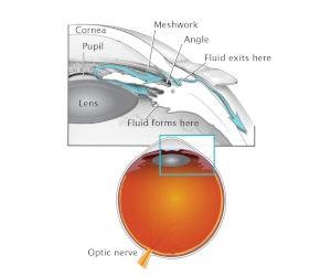 cataract glaucoma