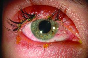 Lash Extension Allergy