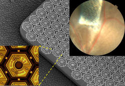 Retina - Photovoltaic Chip